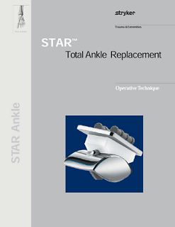 STAR™ Total Ankle Replacement