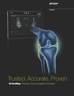 OrthoMap-Precision-Knee-Software-brochure.pdf
